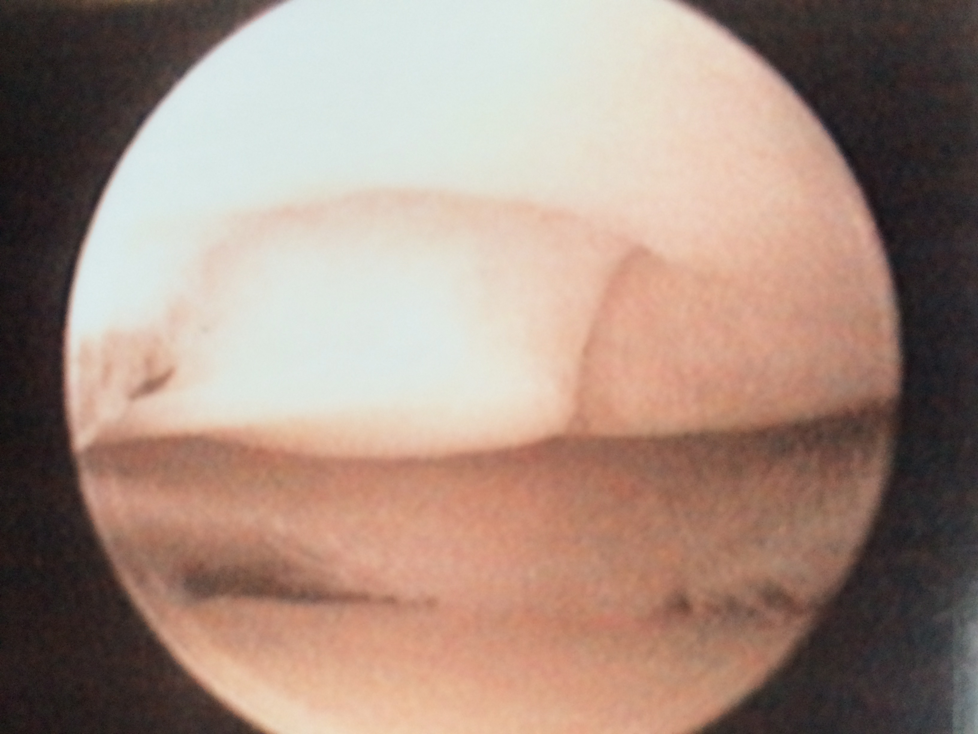 Arthroscopic photo of the author's knee. Note the chondral fracture just to the right of center on the distal femur.